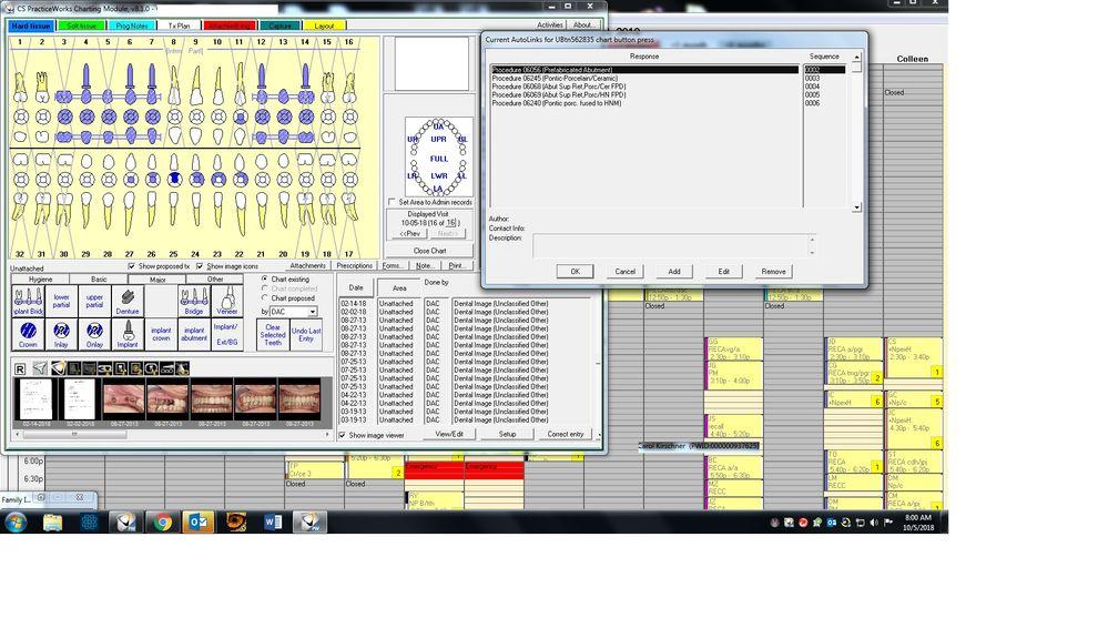 PW implant bridge button.jpg